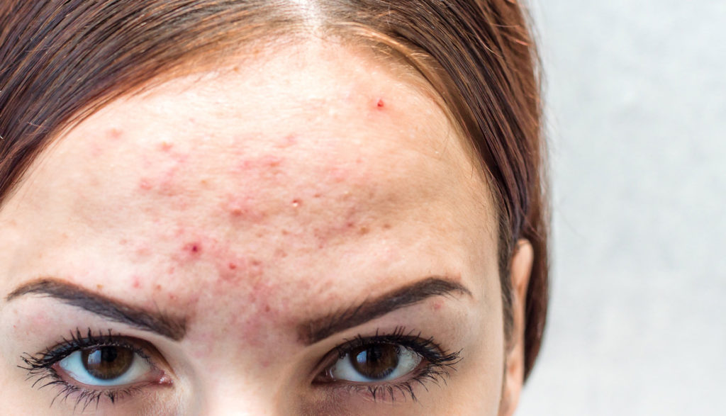 Acne Treatment in Pune